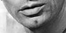 Chin6